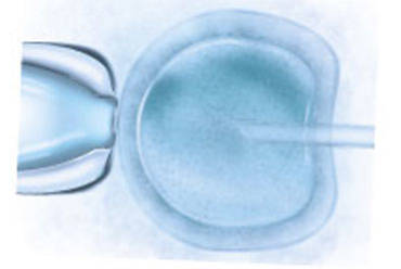 Why you should consider Natural and Mild IVF