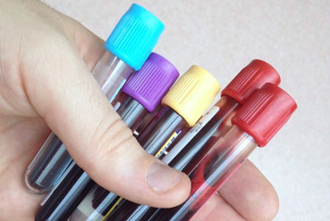 Fertility Blood Tests