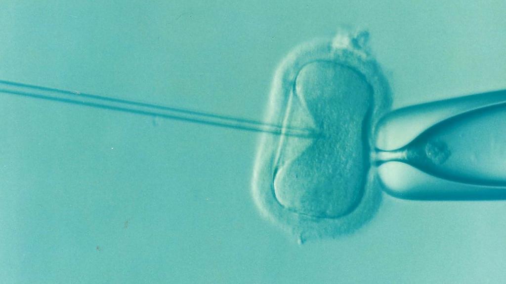 IVF Add-ons
