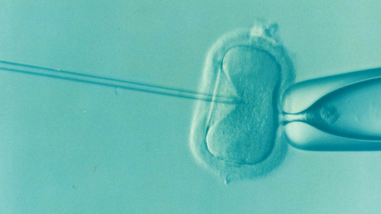 IVF Add-ons – Are they worth the expense?